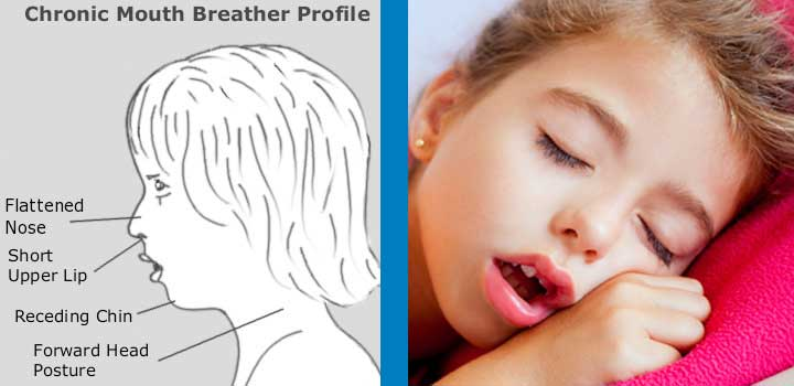 Breathing With Mouth